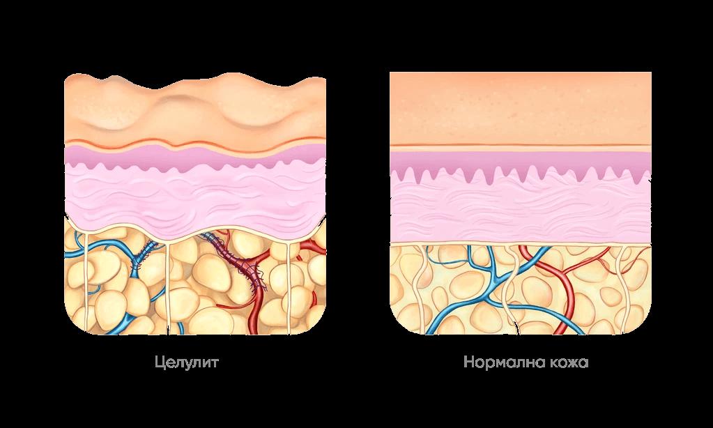 Мултимаск антицелулитен крем за тяло кожа